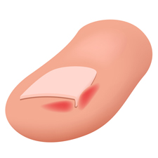 Toe with Ingrown Nail